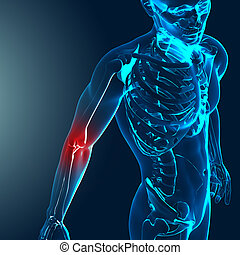 3d render of a medical image with painful elbow highlighted