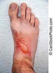 Phytophotodermatitis, cutaneous phototoxic skin inflammatory...