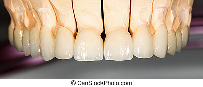 Dental ceramic bridge - Close up photo of dental ceramic...
