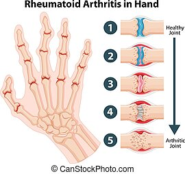 Diagram showing rheumatoid arthriitis in hand illustration