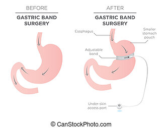 Gastric Band Weight Loss Surgery. If you Tighten or Loosen...