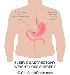 Gastric Bypass - anatomical, anatomy, band, bariatric,...