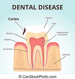 structure of human teeth - dental disease - caries, the...