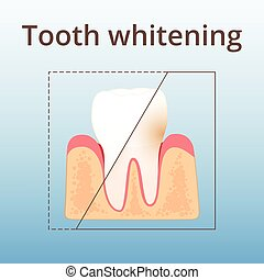 structure of human teeth - teeth whitening, plaque removal...