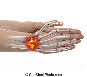 Wrist Pain - Studio shot with 3D illustration isolated on...
