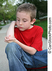 Scraped Arm - A close-up of a boy with a scraped arm.