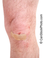 Scraped knee - A close-up of a scraped knee with a bandaid...