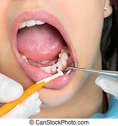 Interdental cleaning on human teeth.