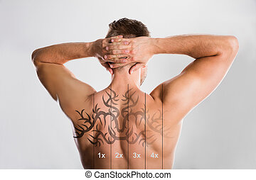 Laser Tattoo Removal On Man's Back - Laser Tattoo Removal On...