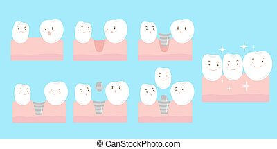 cartoon tooth implant smile happily - cute cartoon tooth...