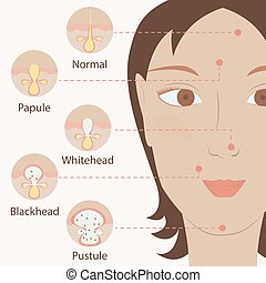Types of acne pimples human skin poster. Facial treatments...