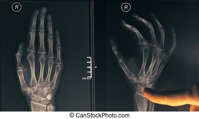 Female doctor demonstrating x-ray image of a hand to a...