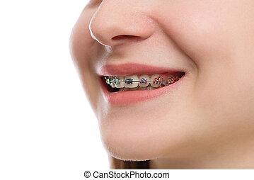 Closeup multicolored Braces on Teeth. Beautiful Female Smile...