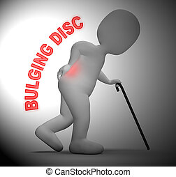 Bulging Disc Showing Back Chiropractor 3d Rendering -...