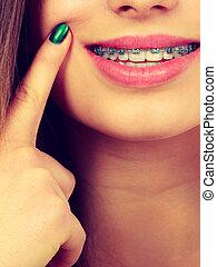 顯示, 婦女, 括號, 她, 牙齒