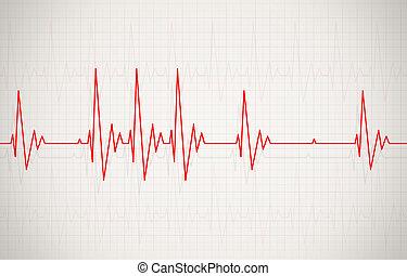 Irregular Heartbeat Illustration - illustration of heart...