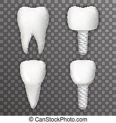 Dental Implant Realistic 3d Tooth Poster Transperent...