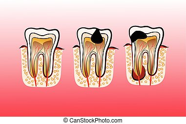 Vector illustration of tooth Decay Caries - Vector...