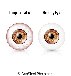 Conjunctivitis. Red Eye. Healthy Eye And Eyeball with...