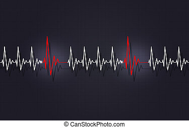 Tachycardia with Arrythmia - medicine illustration of heart...