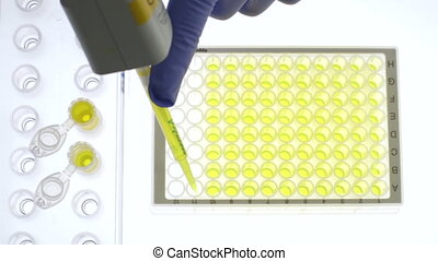 Storing Urine Samples - Scientist is dividing urine samples...