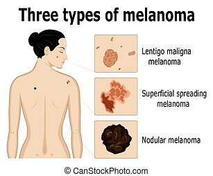 Three types of melanoma that for example located on the back...