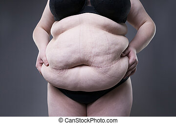 Fat female belly, overweight body, woman with stretch marks on abdomen