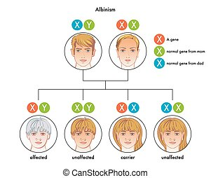 albinism - medical illustration of the albinism diagram