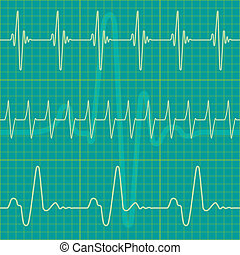 Cardiogram - A set of diagrams as a seamless pattern, but...