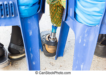 closeup asian old woman with aluminium prostheses on blue...