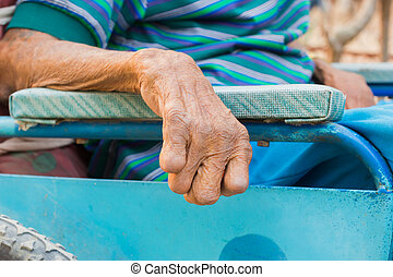 closeup hand of old man suffering from leprosy, amputated hand, on wheelchair