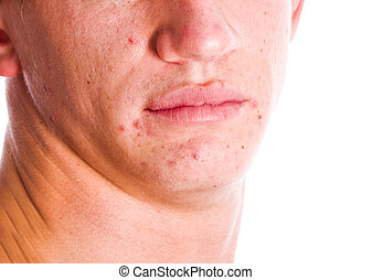 Acne Face - Male ace with acne problem skin isolated on...
