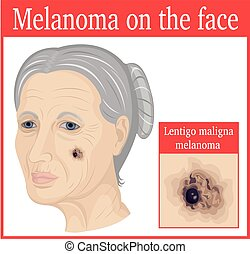 Melanoma on the cheek - Lentigo maligna melanoma on the...