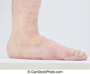 Manifestation of flat feet and fungal diseases. - Men with...