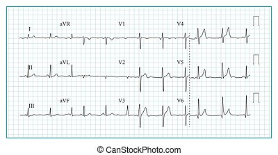 Heart Cardiogram Chart Vector. Illustration Of Wave Form On...