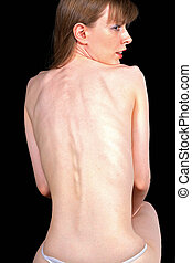Bony back - Sad young girl suffering from anorexia nervosa
