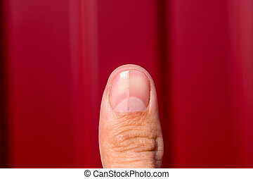 Forked nail on the thumb. Dilation of the nail, traumatic...