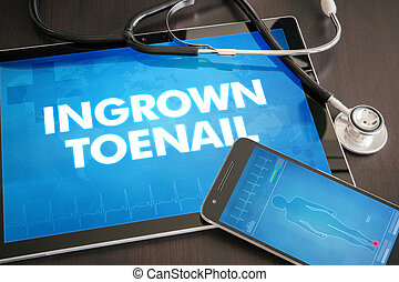 Ingrown toenail (cutaneous disease) diagnosis medical...