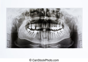 X-rays of the jaw and teeth