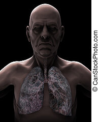 Elderly Male with Lung Cancer Illustration