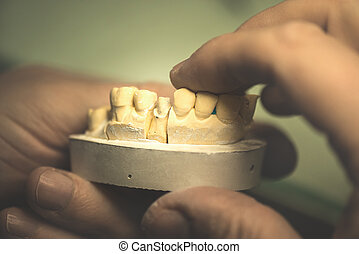 Dental Prosthesis - Dental prosthesis, artificial tooth,...
