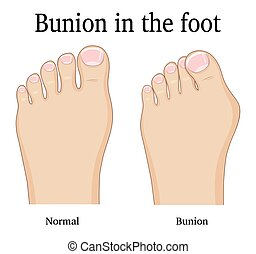 Bunion in the foot - Comparison of a healthy foot and foot...