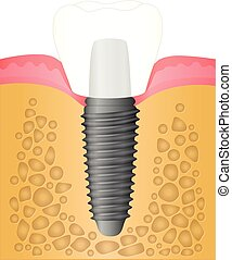 Dental implant - location and attachment of the implant in...