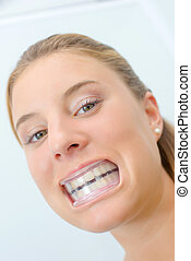 Woman wearing mouth guard after whitening