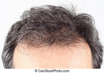 man hair loss problem.