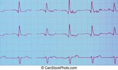 blood pulse - Shot of blood pulse