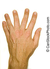 A stock photograph of a man's hand with six fingers.