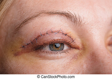 Blepharoplasty of the upper eyelid. An operation that...