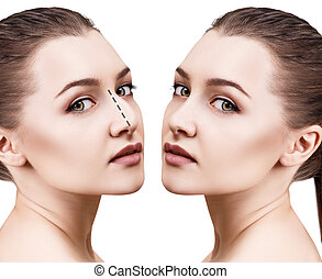 Female nose before and after cosmetic surgery - Female face...