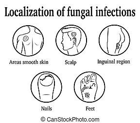 The localization of fungal infections: nails, feet, inguinal...